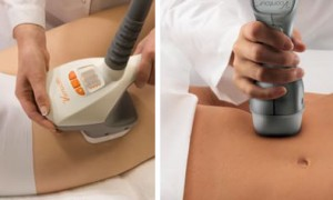velashape-treatment3